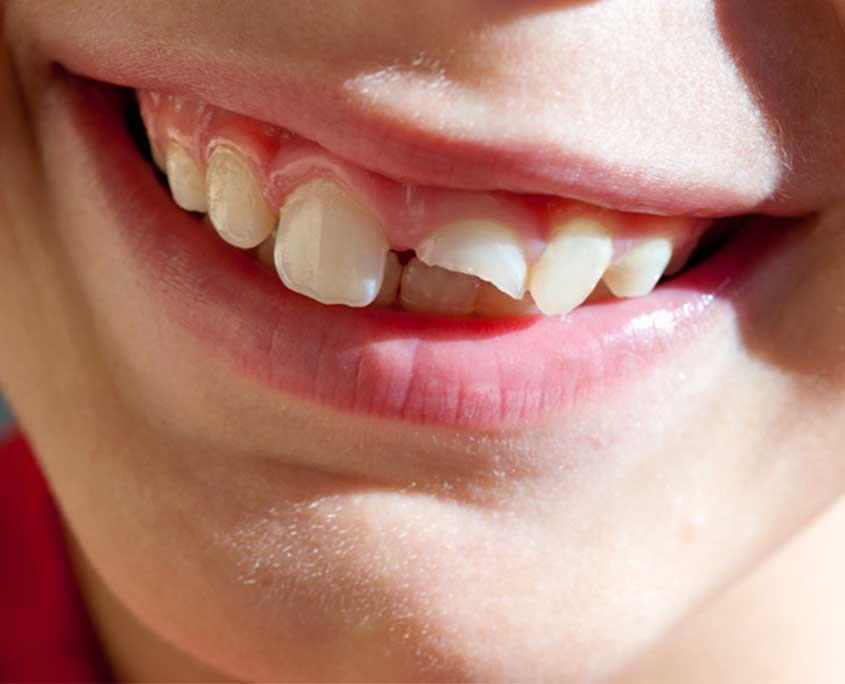 stomatoloska-ordinacija-vunjak-dental-clinic-fraktura-zuba