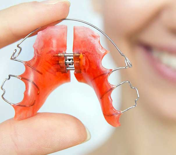 stomatoloska-ordinacija-vunjak-dental-clinic-zubna-proteza-2